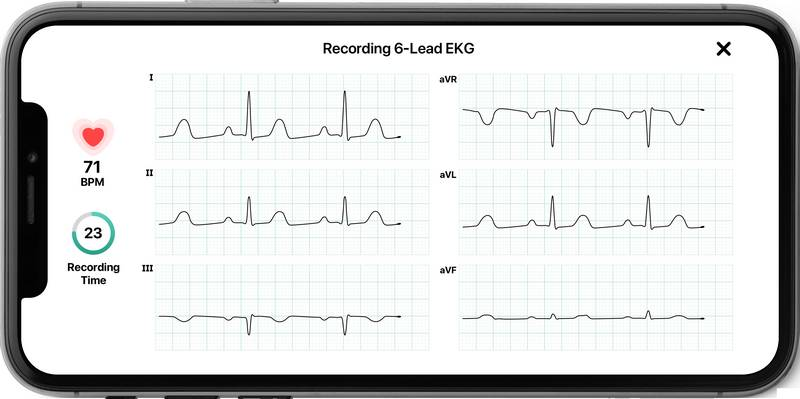 Kardia Mobile 6L - Alivecor heart monitor in horizontal view