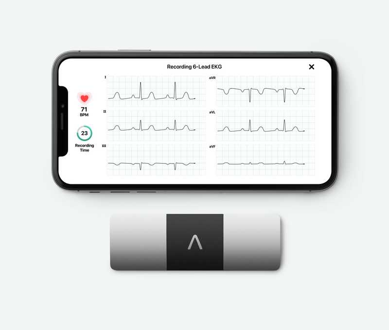 Kardia Mobile 6L personal ECG mobile device